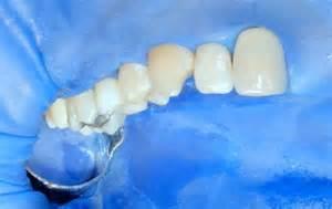 odontoiatria conservativa 2